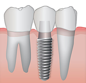 DentalImplants1